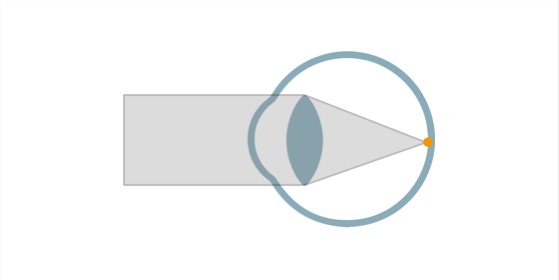 近視ってなに 遠視ってなにpage-visual 近視ってなに 遠視ってなにビジュアル
